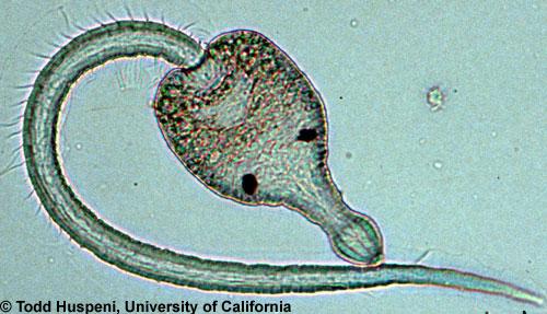 паразиты нервной системе человека