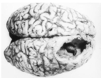 Человеческий кожный овод в мозге