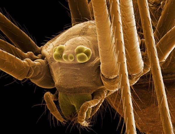 Паразиты под микроскопом 20 фото