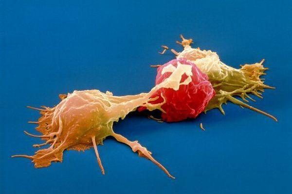 Стимуляция природных клеток-киллеров для атаки на рак
