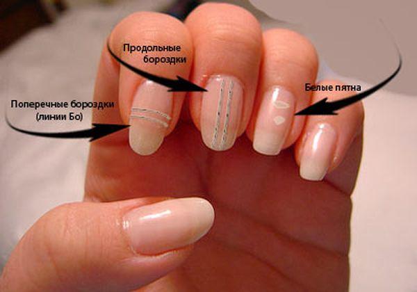 При артрите могут быть изменения ногтя, продольные полоски