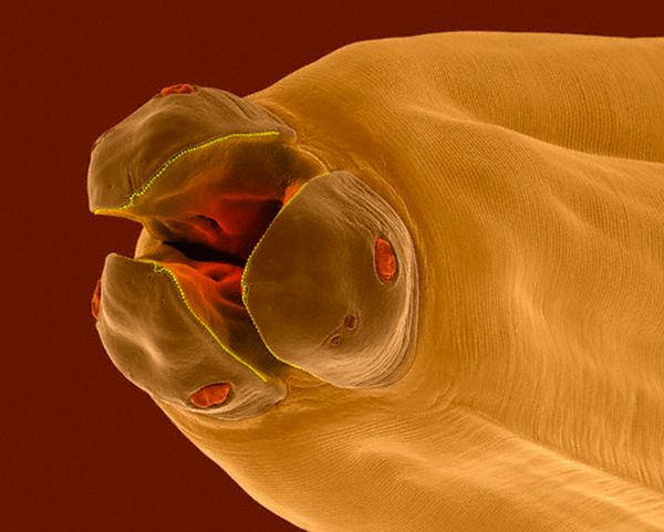 паразит токсокара симптомы лечение