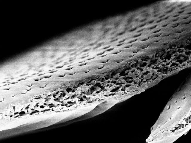 Покрытие панциря белого бриллиантового жука в разрезе (фото Lorenzo Cortese).