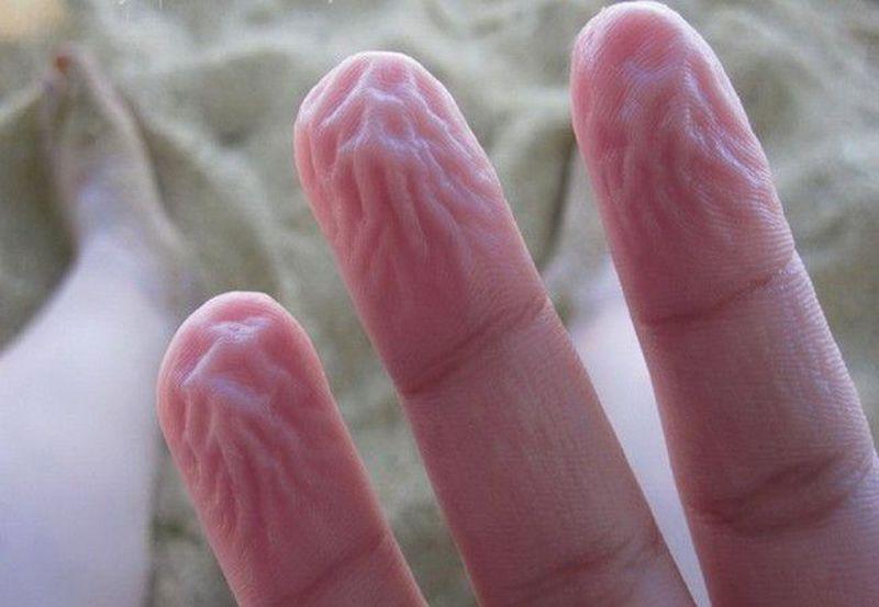 аллергия на пальцах рук пузырьки от гель