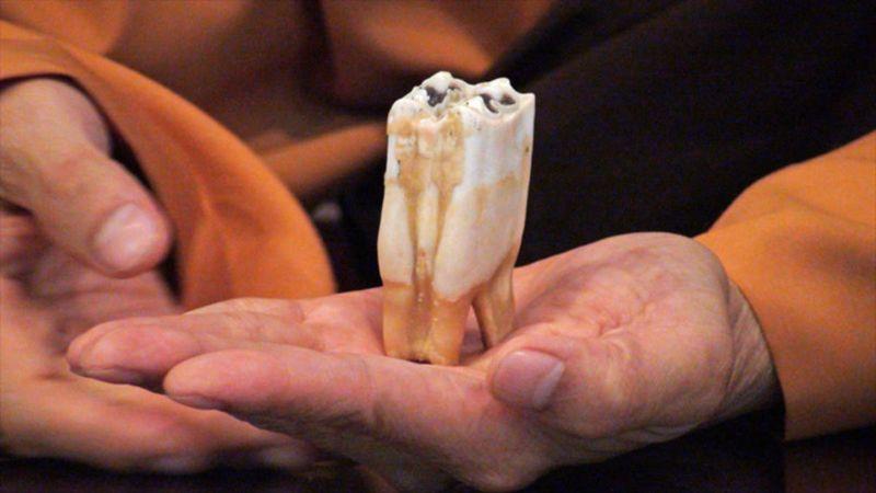 10 невероятных фактов о человеческих зубах