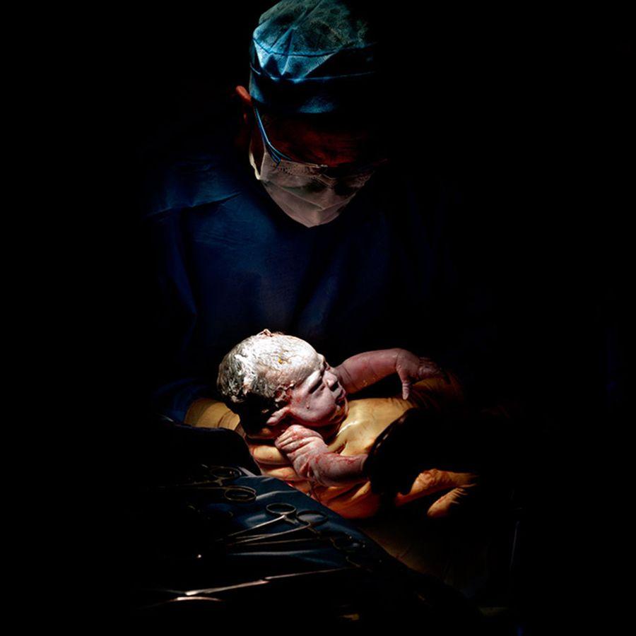 Фотографии младенцев сразу после рождения